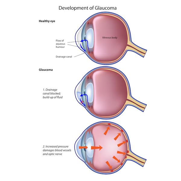 glaucoma-development-eye