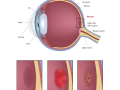 eye-macular-degeneration-blindness