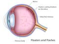 eye-vitreal-floaters-flashes