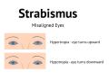 strabismus-hypertropia-hypotropia