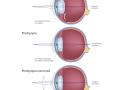 eye-farsightedness-presbyopia